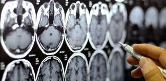 Donazione del cervello stimolata dal centro di ricerca sulla demenza di Cardiff