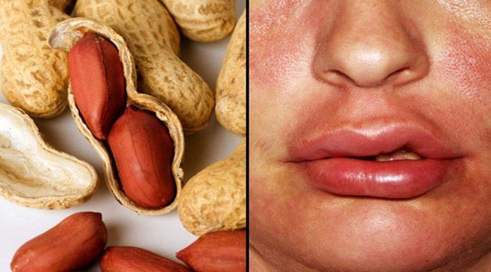Il trattamento per l'allergia alle arachidi è promettente nello studio