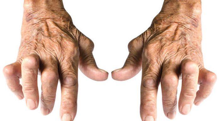 Farmaco reumatoide - Nessun aiuto ai pazienti affetti da artrite