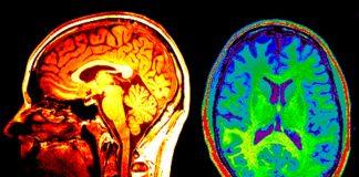 Possono le scansioni cerebrali rivelare chi sono i vostri amici?