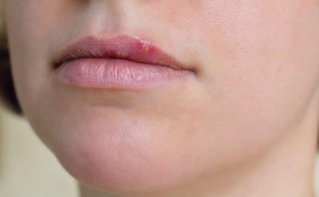 Meno americani contagiati dall'herpes