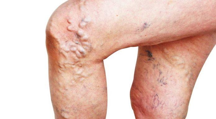Vene varicose legate a maggiori probabilità di coaguli di sangue