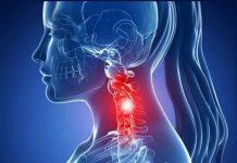"""Le lesioni cervicali """"moderate"""" possono non aver bisogno di cure"""